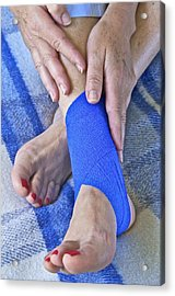 Ankle Injury Acrylic Print by Science Photo Library