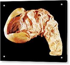 Aorta In Syphilis Acrylic Print