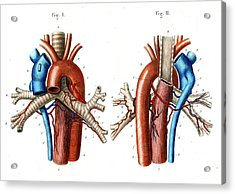 Aortic Arch Acrylic Print by Collection Abecasis