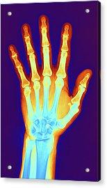 Arthritic Hand, X-ray Acrylic Print