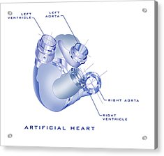 Artificial Heart Acrylic Print