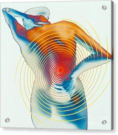 Back Pain Acrylic Print by Dennis D Potokar