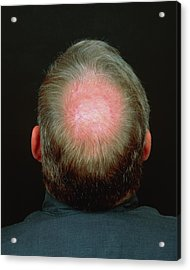 Baldness Acrylic Print by Alex Bartel/science Photo Library