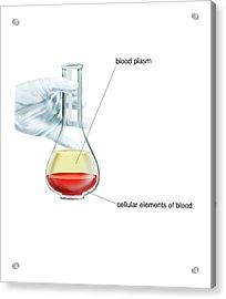 Blood Fractionation Acrylic Print by Asklepios Medical Atlas