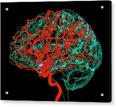 Blood Vessels Supplying The Brain Acrylic Print by K H Fung/science Photo Library