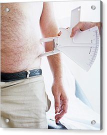 Body Fat Assessment Acrylic Print by Ian Hooton/science Photo Library