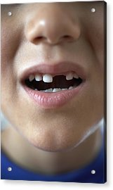 Boy (6-8) With Gap In Teeth, Close-up Acrylic Print by Thomas Northcut