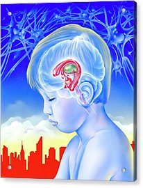 Brain And Childhood Depression Acrylic Print by John Bavosi