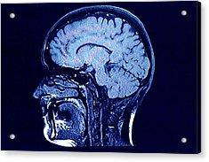 Brain Head Scan Acrylic Print by Roxana Wegner