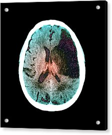 Brain In Stroke Acrylic Print by Zephyr