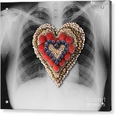 Chest X-ray & Heart-healthy Foods Acrylic Print by Gwen Shockey