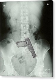 Chest X-ray Showing Hidden Gun Acrylic Print by Scott Camazine