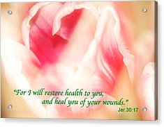 I Will Restore Health To You  Acrylic Print