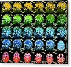 Coloured Mri Scans Of A Healthy Human Brain Acrylic Print by Simon Fraser/science Photo Library