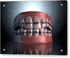 Creepy Teeth With Braces Acrylic Print by Allan Swart