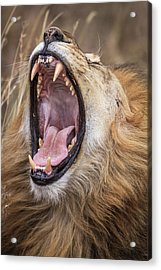 Dental Check Acrylic Print