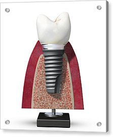 Dental Implant, Artwork Acrylic Print