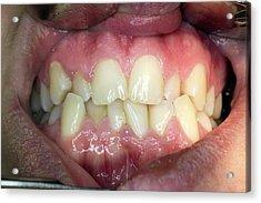 Dental Malocclusion Acrylic Print by Dr Armen Taranyan