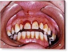 Dental Plaque And Gum Disease Acrylic Print