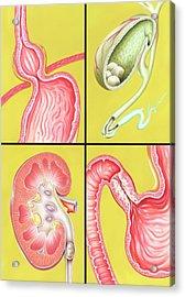 Digestive-excretory Disorders Acrylic Print by John Bavosi