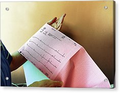 Electrocardiography Test Results Acrylic Print