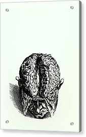 Engraving Of Historical Brain Dissection Acrylic Print
