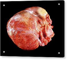 Enlarged Heart In Acromegaly Acrylic Print by Pr. R. Abelanet - Cnri