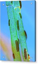 Epithemia Diatoms Acrylic Print