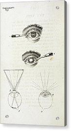 Eye Surgery Acrylic Print