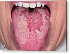 Geographic Tongue Acrylic Print by Dr P. Marazzi/science Photo Library