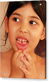 Girl With Missing Tooth Acrylic Print by Photostock-israel