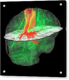 Glioblastoma Brain Tumour Acrylic Print
