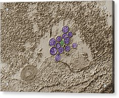 Hantavirus, Tem Acrylic Print by Eye of Science