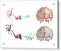 Healthy And Alzheimer's Brains Acrylic Print by Gunilla Elam