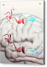 Healthy And Alzheimer's Neurons Acrylic Print