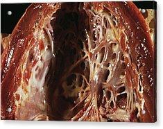 Heart Fibroelastosis Acrylic Print by Cnri/science Photo Library