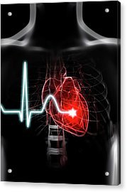 Heartbeat Acrylic Print by Sciepro/science Photo Library