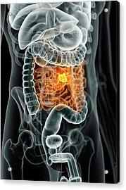 Human Bowel Cancer Acrylic Print by Sciepro
