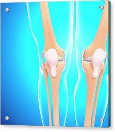 Human Knee Joints Acrylic Print by Pixologicstudio