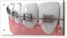 Human Teeth Extreme Closeup With Metal Braces Acrylic Print by Allan Swart