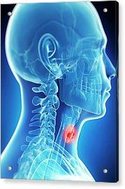 Human Thyroid Cancer Acrylic Print by Sebastian Kaulitzki