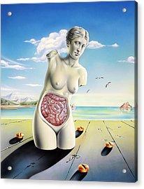 Intestinal Disorders Acrylic Print
