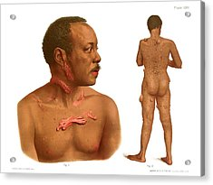 Keloids And Fibromas Acrylic Print by Us National Library Of Medicine/science Photo Library