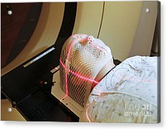 Lasers Used To Position A Patient Acrylic Print