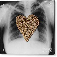 Lentils, Heart-healthy Food Acrylic Print by Gwen Shockey
