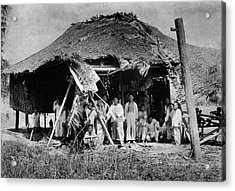 Lepers In The Philippines Acrylic Print by National Library Of Medicine