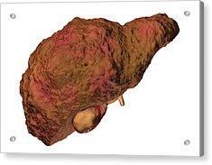 Liver Cirrhosis Acrylic Print