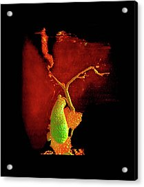 Liver Disorder Acrylic Print by Anders Persson, Cmiv