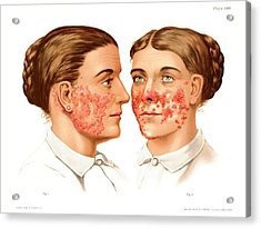 Lupus Erythematosus And Vulgaris Acrylic Print by Us National Library Of Medicine/science Photo Library