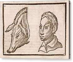 Man And Pig's Head Acrylic Print